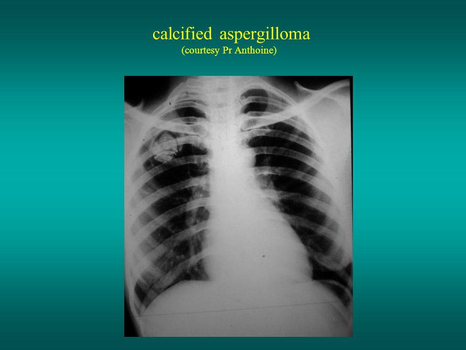calcified aspergilloma (courtesy Pr Anthoine)