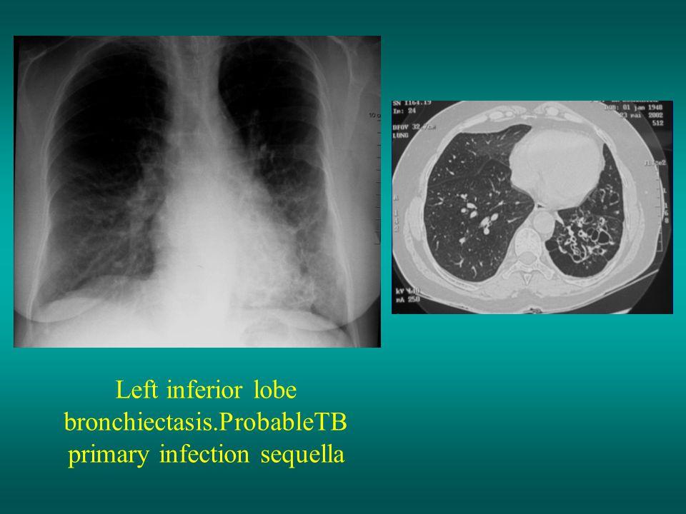 Left inferior lobe bronchiectasis.ProbableTB primary infection sequella