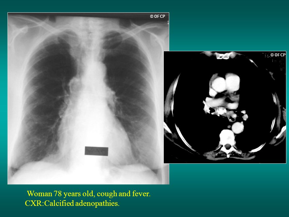 Woman 78 years old, cough and fever. CXR:Calcified adenopathies.