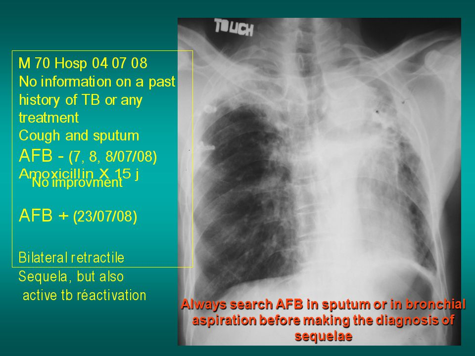 Always search AFB in sputum or in bronchial aspiration before making the diagnosis of sequelae No improvment