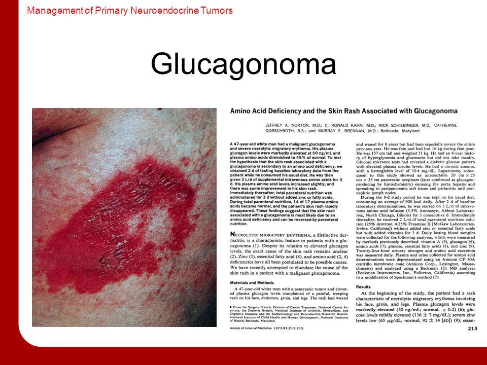 Management of Primary Neuroendocrine Tumors Glucagonoma