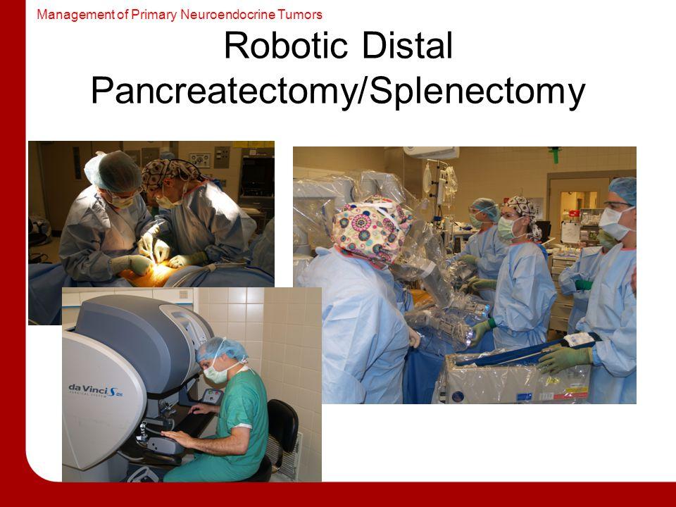Management of Primary Neuroendocrine Tumors Robotic Distal Pancreatectomy/Splenectomy