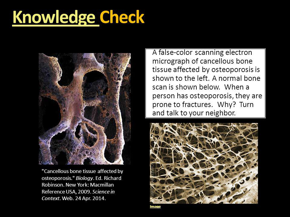 Knowledge Knowledge Check Knowledge A false-color scanning electron micrograph of cancellous bone tissue affected by osteoporosis is shown to the left