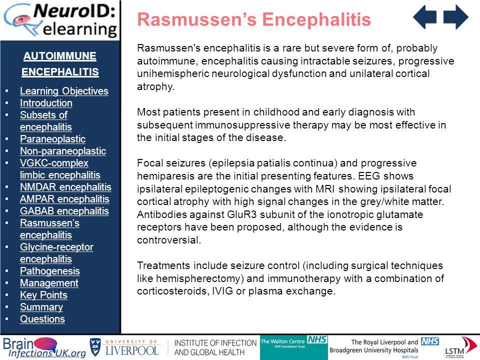 AUTOIMMUNE ENCEPHALITIS Learning Objectives Introduction Subsets of encephalitisSubsets of encephalitis Paraneoplastic Non-paraneoplastic VGKC-complex limbic encephalitisVGKC-complex limbic encephalitis NMDAR encephalitis AMPAR encephalitis GABAB encephalitis Rasmussens encephalitisRasmussens encephalitis Glycine-receptor encephalitisGlycine-receptor encephalitis Pathogenesis Management Key Points Summary Questions Rasmussens Encephalitis Rasmussen s encephalitis is a rare but severe form of, probably autoimmune, encephalitis causing intractable seizures, progressive unihemispheric neurological dysfunction and unilateral cortical atrophy.