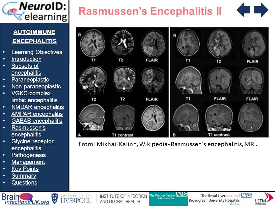 AUTOIMMUNE ENCEPHALITIS Learning Objectives Introduction Subsets of encephalitisSubsets of encephalitis Paraneoplastic Non-paraneoplastic VGKC-complex limbic encephalitisVGKC-complex limbic encephalitis NMDAR encephalitis AMPAR encephalitis GABAB encephalitis Rasmussens encephalitisRasmussens encephalitis Glycine-receptor encephalitisGlycine-receptor encephalitis Pathogenesis Management Key Points Summary Questions Rasmussens Encephalitis II From: Mikhail Kalinn, Wikipedia- Rasmussens encephalitis, MRI.