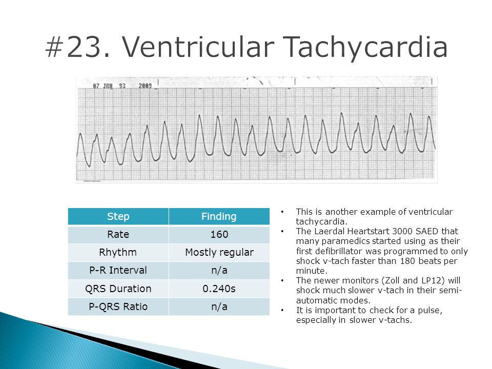 StepFinding Rate160 RhythmMostly regular P-R Intervaln/a QRS Duration0.240s P-QRS Ration/a This is another example of ventricular tachycardia.