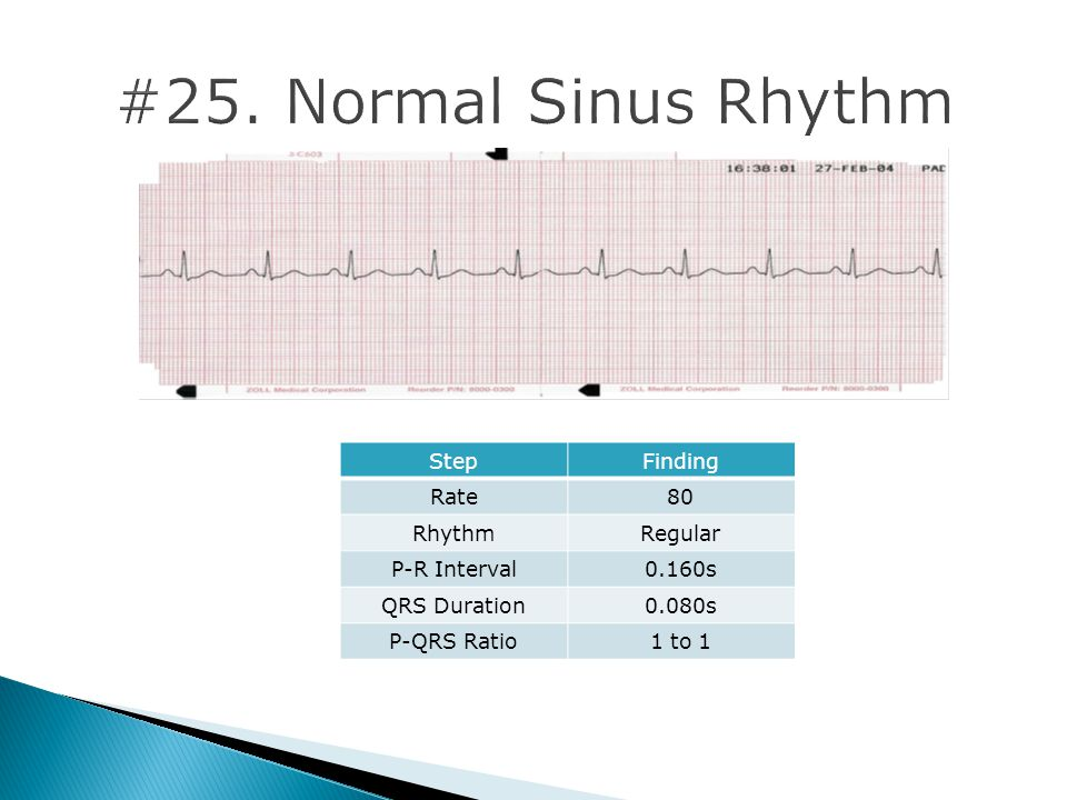 StepFinding Rate80 RhythmRegular P-R Interval0.160s QRS Duration0.080s P-QRS Ratio1 to 1