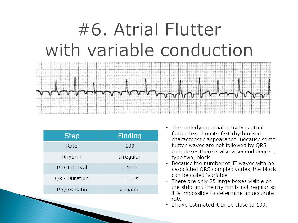 The underlying atrial activity is atrial flutter based on its fast rhythm and characteristic appearance.