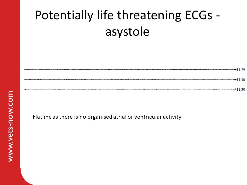 www.vets-now.com Potentially life threatening ECGs - asystole Flatline as there is no organised atrial or ventricular activity