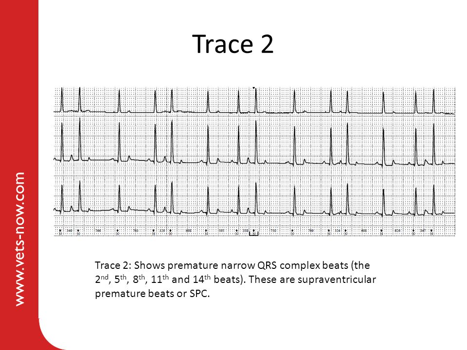 www.vets-now.com Trace 2 Trace 2: Shows premature narrow QRS complex beats (the 2 nd, 5 th, 8 th, 11 th and 14 th beats).