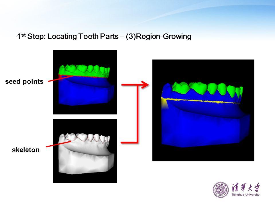 seed points skeleton 1 st Step: Locating Teeth Parts – (3)Region-Growing