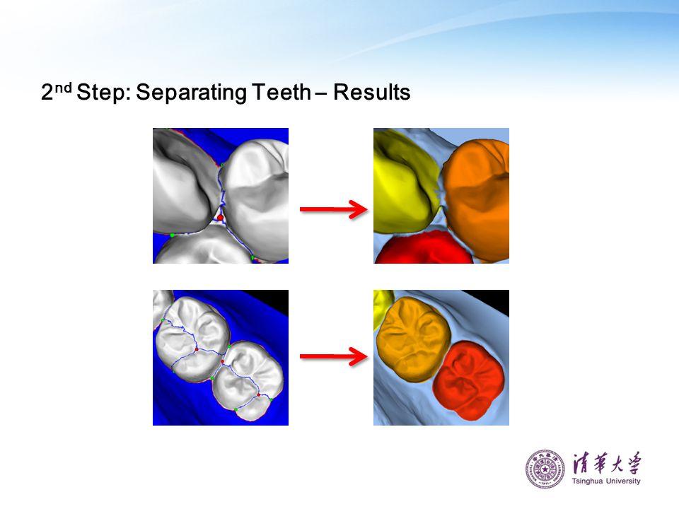 2 nd Step: Separating Teeth – Results