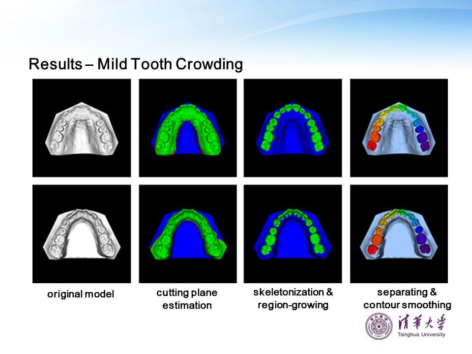 Results – Mild Tooth Crowding original model cutting plane estimation skeletonization & region-growing separating & contour smoothing