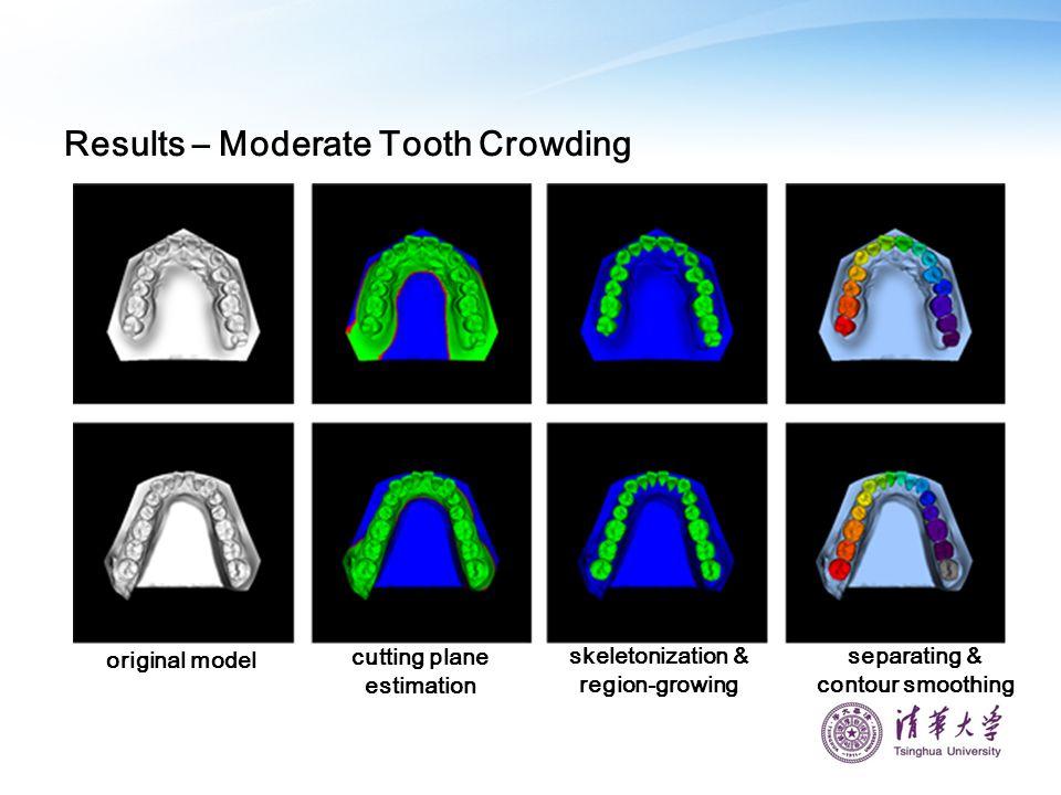 Results – Moderate Tooth Crowding original model cutting plane estimation skeletonization & region-growing separating & contour smoothing