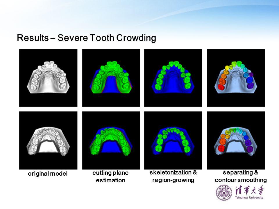 Results – Severe Tooth Crowding original model cutting plane estimation skeletonization & region-growing separating & contour smoothing