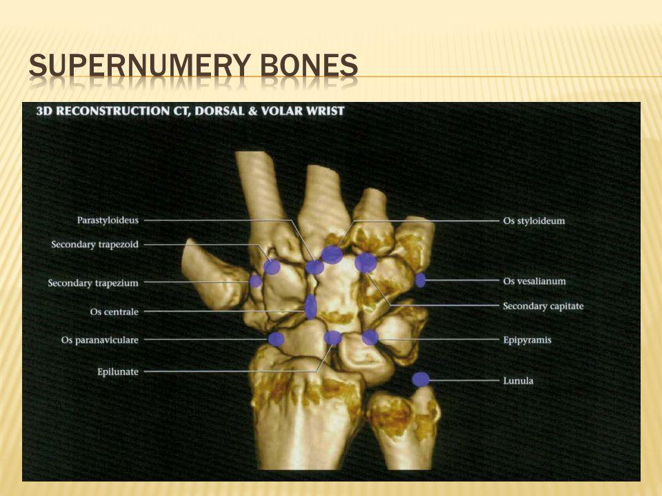 Volar bursae: Ulnar and radial sheaths Common flexor tendon sheath encases – index, middle, ring and little finger tendons Flexor pollics longs has a separate sheath