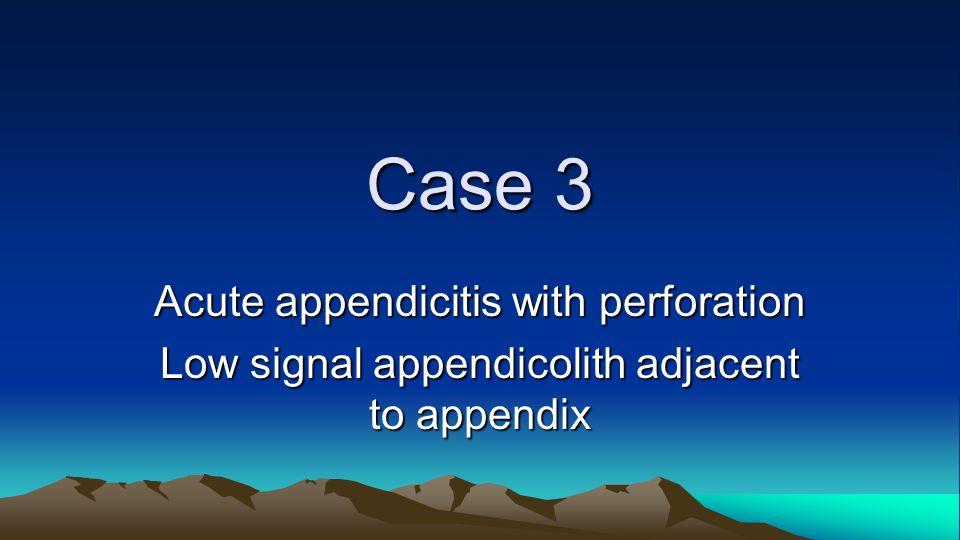 Acute appendicitis with perforation Low signal appendicolith adjacent to appendix Case 3