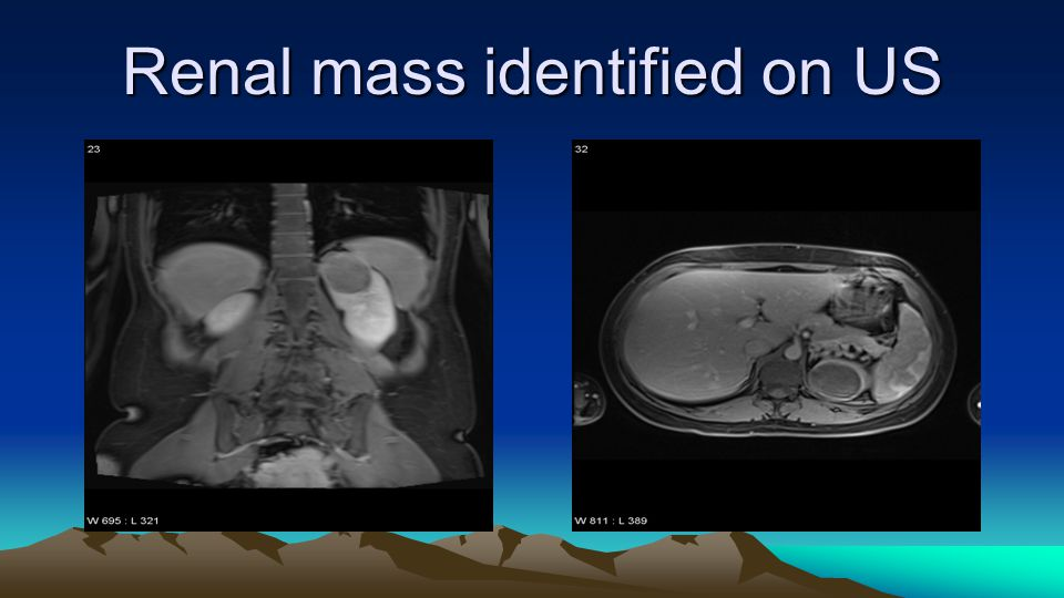 Renal mass identified on US