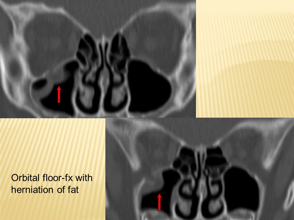 Orbital floor-fx with herniation of fat