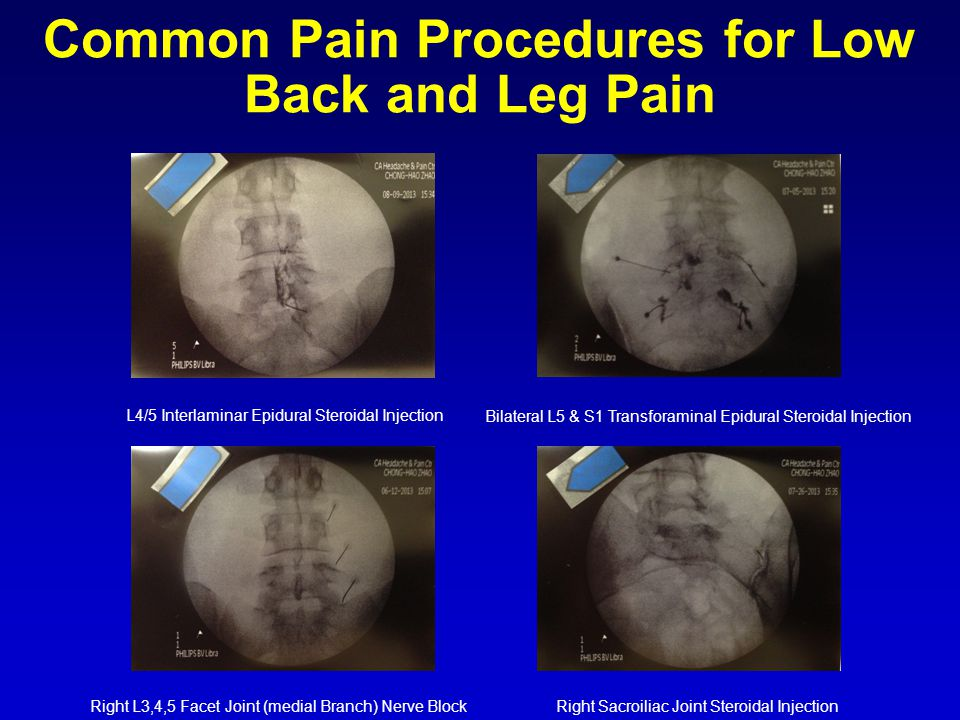 Common Pain Procedures for Low Back and Leg Pain L4/5 Interlaminar Epidural Steroidal Injection Bilateral L5 & S1 Transforaminal Epidural Steroidal Injection Right L3,4,5 Facet Joint (medial Branch) Nerve BlockRight Sacroiliac Joint Steroidal Injection