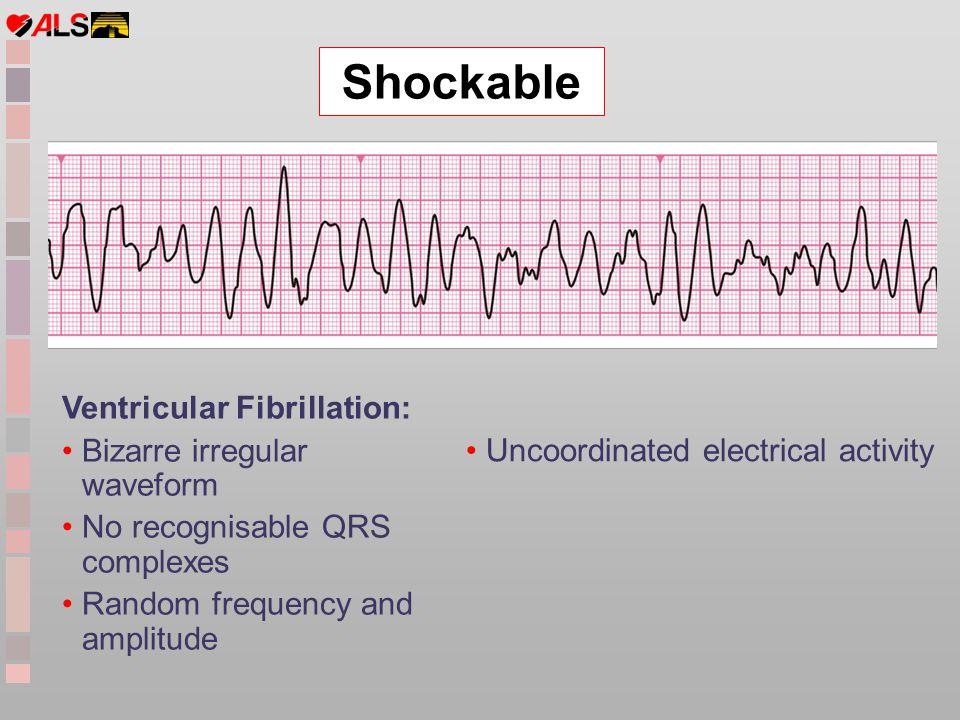 Ventricular Fibrillation: Bizarre irregular waveform No recognisable QRS complexes Random frequency and amplitude Uncoordinated electrical activity Sh