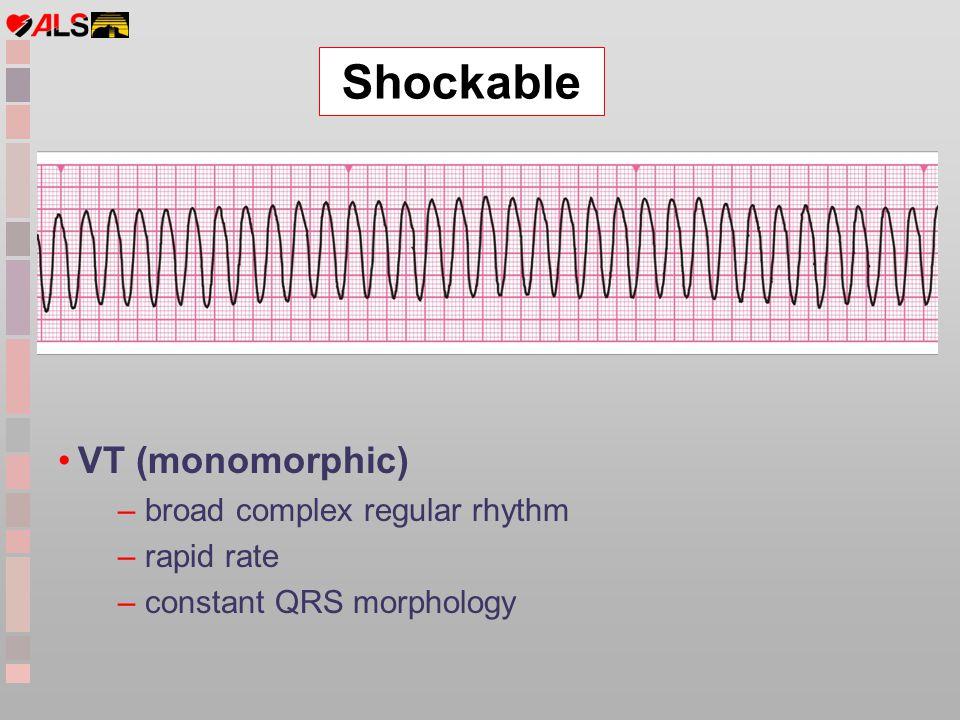 Shockable VT (monomorphic) – broad complex regular rhythm – rapid rate – constant QRS morphology
