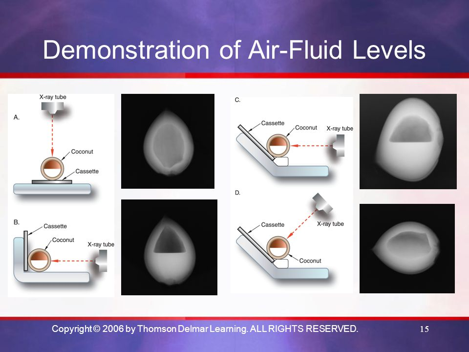 Copyright © 2006 by Thomson Delmar Learning. ALL RIGHTS RESERVED.15 Demonstration of Air-Fluid Levels