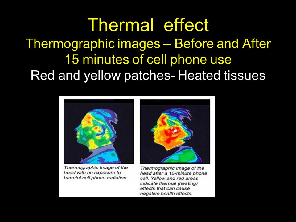 Thermal effect Thermographic images – Before and After 15 minutes of cell phone use Red and yellow patches- Heated tissues