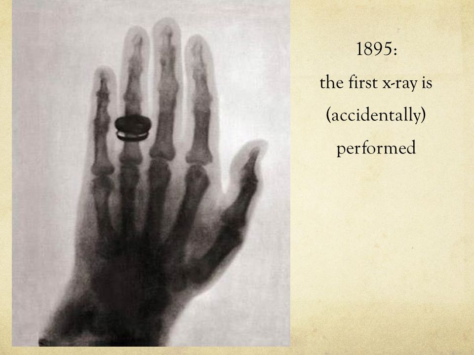 1895: the first x-ray is (accidentally) performed
