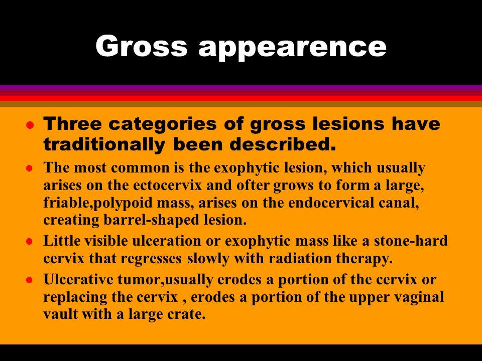 How can we make a diagnosis? l SIGNS l Vagina: mucous, fornix l Cervix: erosion growth ulceration barrel-shaped l Uterus: size, mobility l Paramet: th