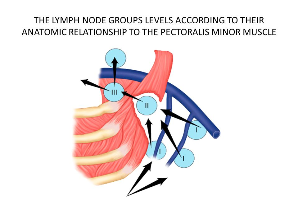 THE LYMPH NODE GROUPS LEVELS ACCORDING TO THEIR ANATOMIC RELATIONSHIP TO THE PECTORALIS MINOR MUSCLE