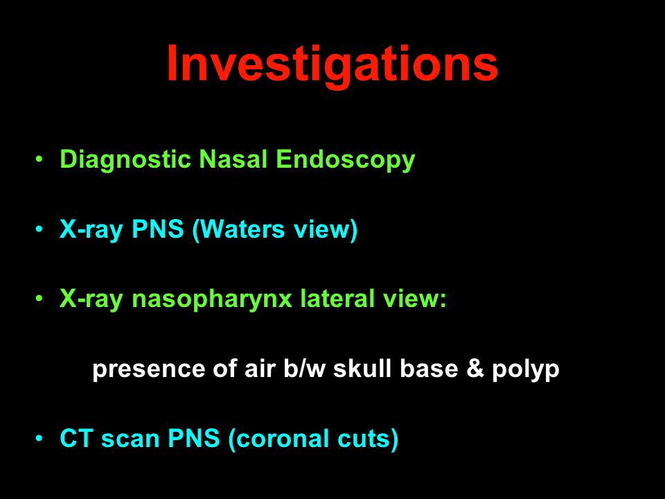 Investigations Diagnostic Nasal Endoscopy X-ray PNS (Waters view) X-ray nasopharynx lateral view: presence of air b/w skull base & polyp CT scan PNS (