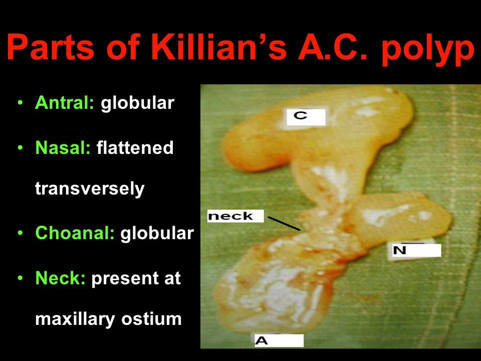 Parts of Killians A.C. polyp Antral: globular Nasal: flattened transversely Choanal: globular Neck: present at maxillary ostium