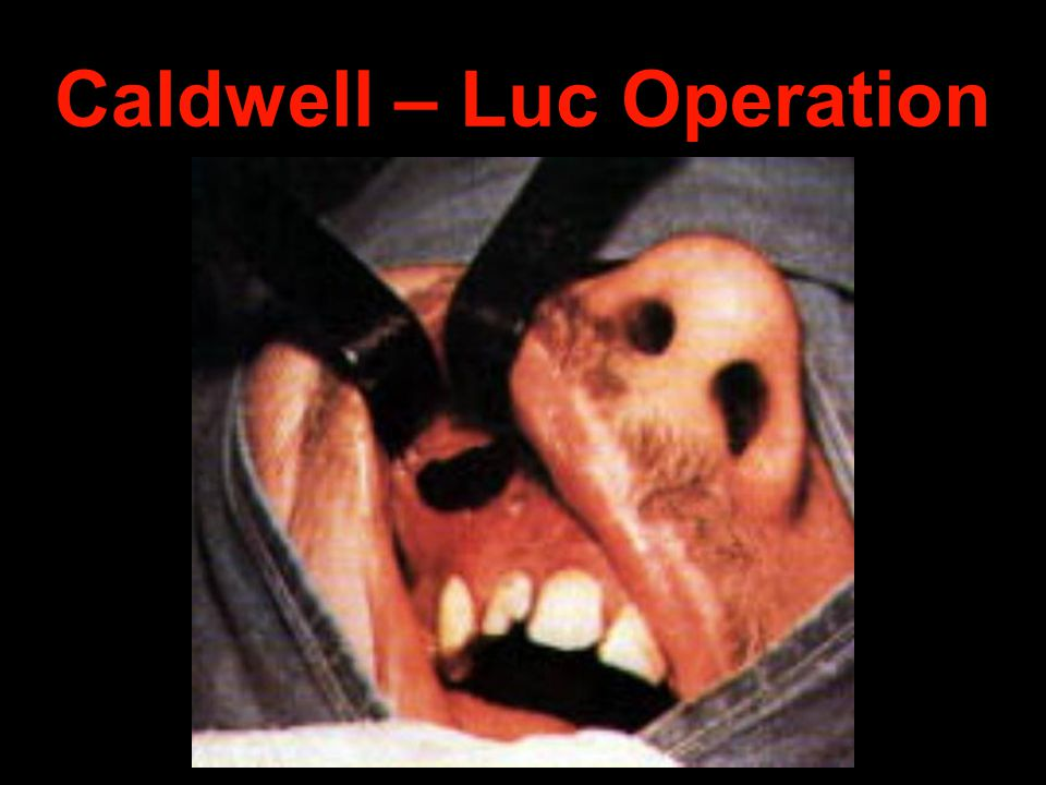 Caldwell – Luc Operation