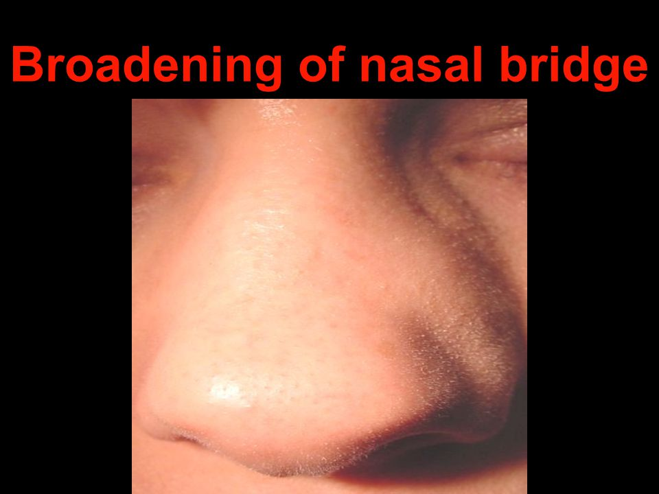 Broadening of nasal bridge
