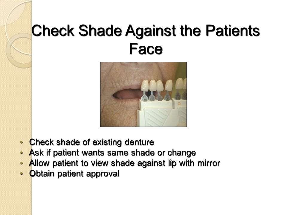 Check Shade Against the Patients Face Check shade of existing denture Check shade of existing denture Ask if patient wants same shade or change Ask if patient wants same shade or change Allow patient to view shade against lip with mirror Allow patient to view shade against lip with mirror Obtain patient approval Obtain patient approval