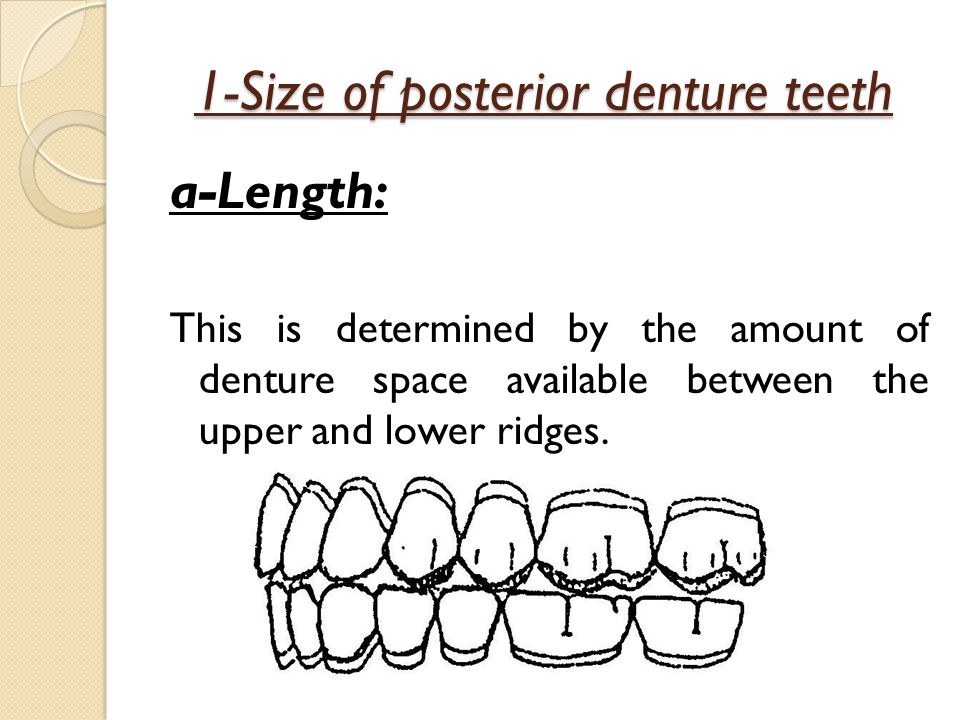 1-Size of posterior denture teeth a-Length: This is determined by the amount of denture space available between the upper and lower ridges.