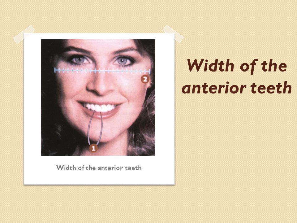 Width of the anterior teeth