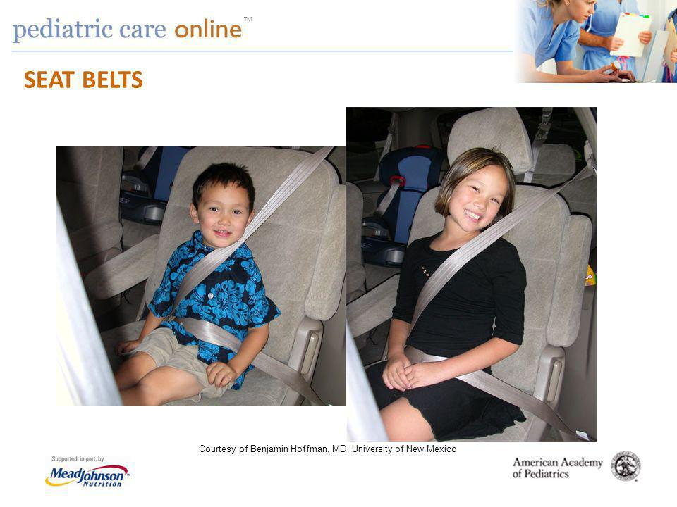 TM SEAT BELTS Courtesy of Benjamin Hoffman, MD, University of New Mexico
