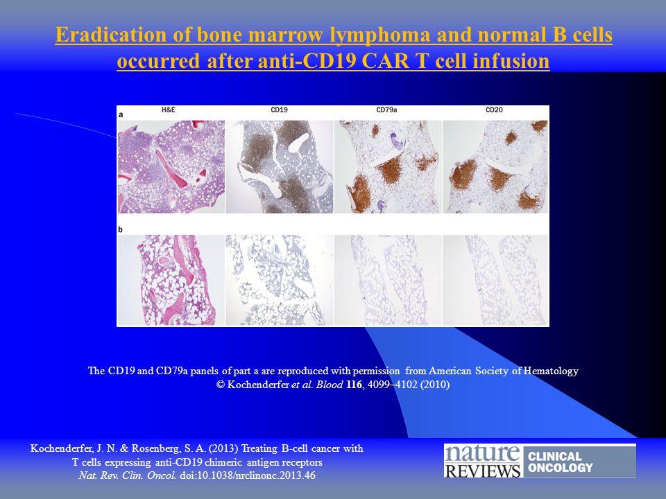 Kochenderfer, J. N. & Rosenberg, S. A. (2013) Treating B cell cancer with T cells expressing anti-CD19 chimeric antigen receptors Nat. Rev. Clin. Onco