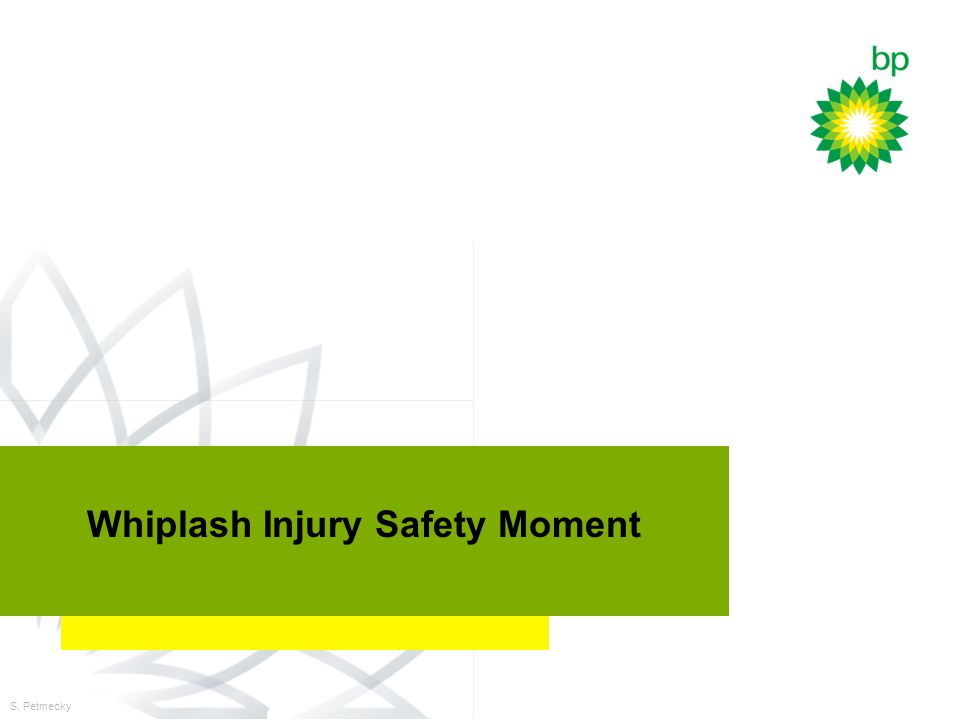 DWX Technology Planning Workshop July 27, 2000 Whiplash Injury Safety Moment S. Petmecky