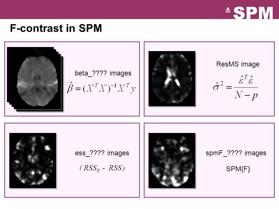 F-contrast in SPM ResMS image spmF_ . images SPM{F} ess_ .