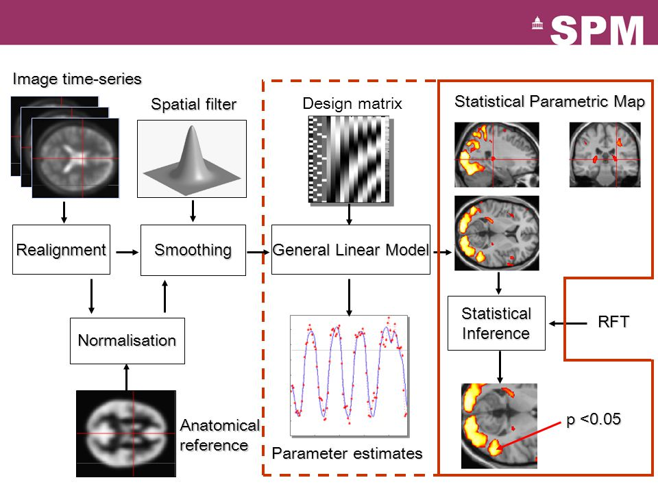 Normalisation Statistical Parametric Map Image time-series Parameter estimates General Linear Model RealignmentSmoothing Design matrix Anatomical reference Spatial filter Statistical Inference RFT p <0.05