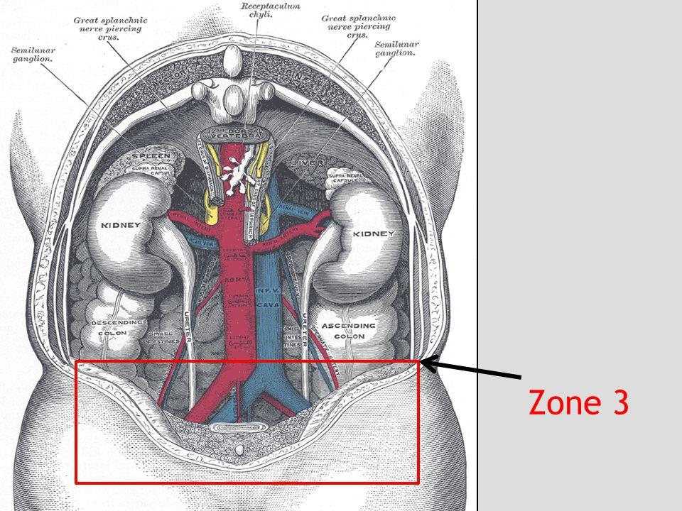 Retroperitoneal Injury Cattell-Braasch manoeuvre