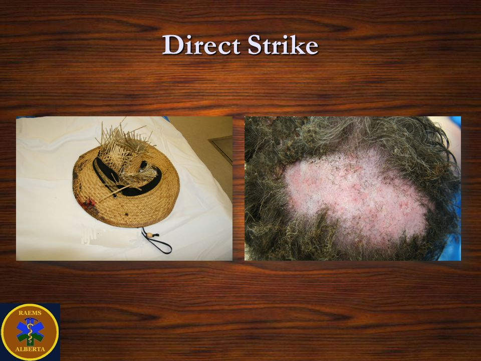 Direct Strike