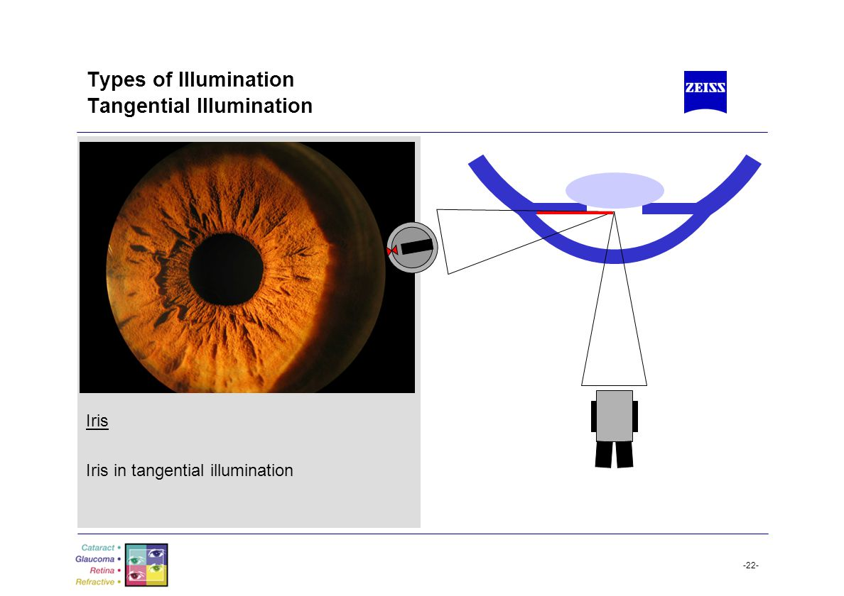 -22- Types of Illumination Tangential Illumination Iris Iris in tangential illumination