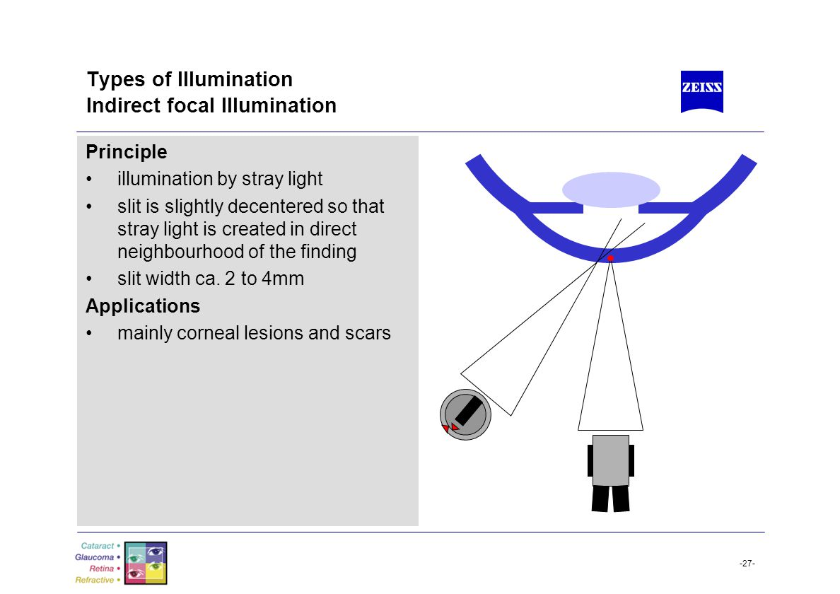 -27- Types of Illumination Indirect focal Illumination Principle illumination by stray light slit is slightly decentered so that stray light is create