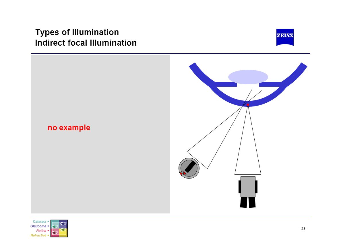 -28- Types of Illumination Indirect focal Illumination no example