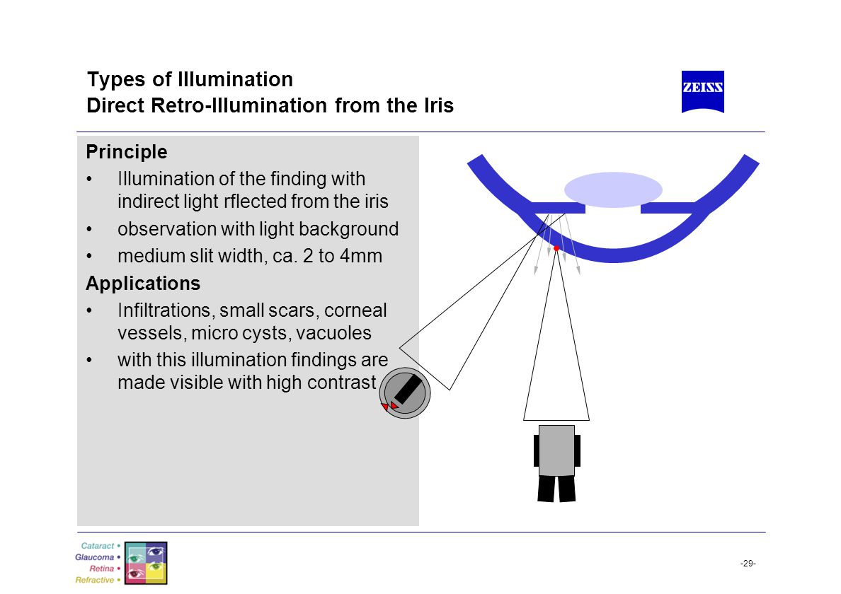 -29- Types of Illumination Direct Retro-Illumination from the Iris Principle Illumination of the finding with indirect light rflected from the iris ob