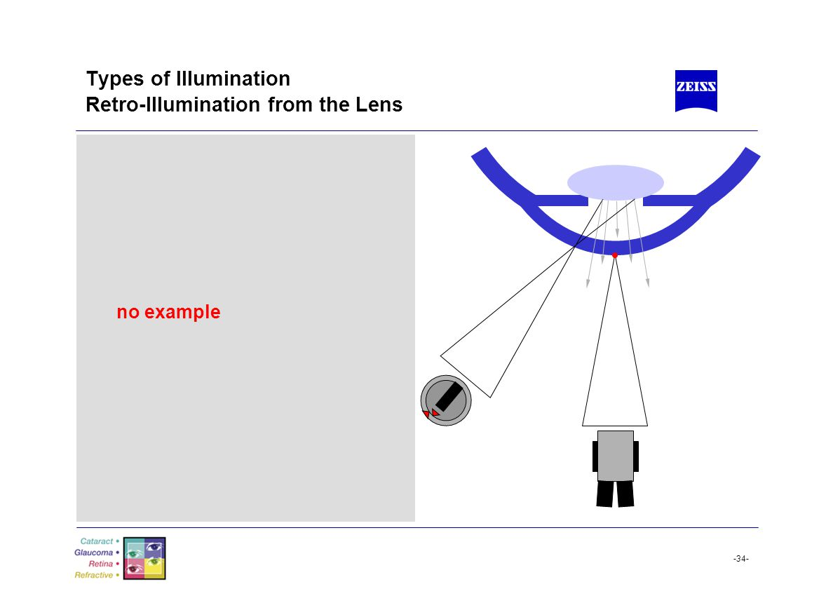-34- Types of Illumination Retro-Illumination from the Lens no example